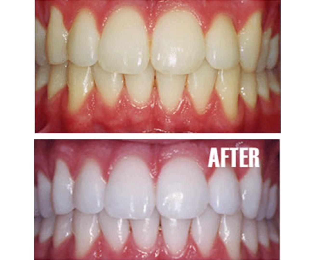 Teeth Whitening Kit Online 9 Shades Lighter Teeth In 2